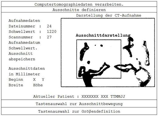 Darstellung einer ausgezeichneten Tabelle mit integriertem Bild entsprechend dem Originallayout der Erfassungsvorlage unseres Erfassungsmusters Diplomarbeit